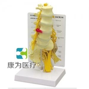 """""""康为医疗""""医患关系沟通模型-骶骨附腰神经、右侧骶骨神经和坐骨神经模型 (医学指导模型)"""