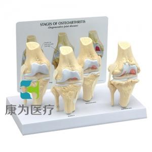 """""""康为医疗""""医患关系沟通模型-膝关节病变模型 (医学指导模型)"""